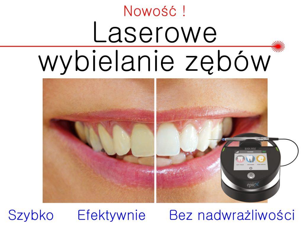 wybielanie zębów, r2