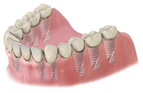 implanty kilka